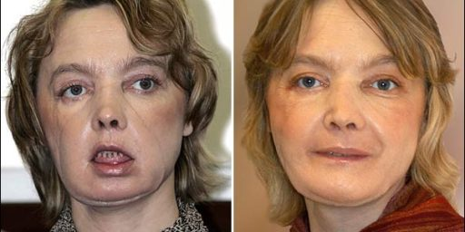 Face Transplant Recipient's New Face Came from Suicide