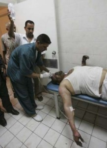 A man who was wounded in a bomb attack receives treatment at a hospital in Kerbala, 80 km (50 miles) southwest of Baghdad August 4, 2008. Four civilians were wounded when a bomb inside a minibus expolded in Kerbala on Monday, police said. Picture taken August 4, 2008. REUTERS/Mushtaq Muhammed (IRAQ)