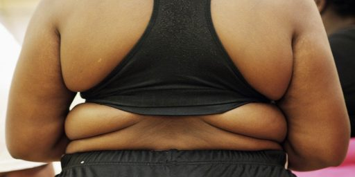 42% of Americans Obese by 2030, Up From 35% Today