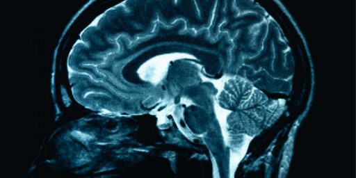 Your Brain Starts To Deteriorate At Age 24